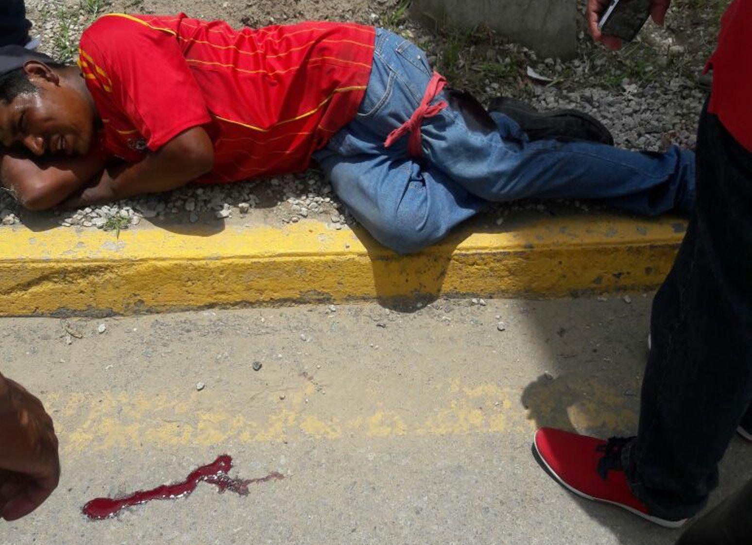 Atacan a navajazos a limpiaparabrisas en  San Antonio de la Cal | El Imparcial de Oaxaca