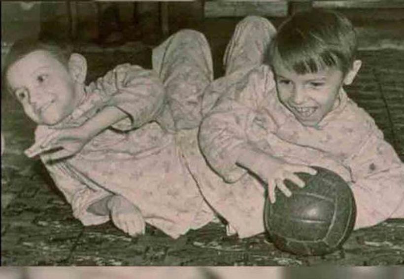 La cruda historia de las gemelas siamesas Krivoshlyopova | El Imparcial de Oaxaca