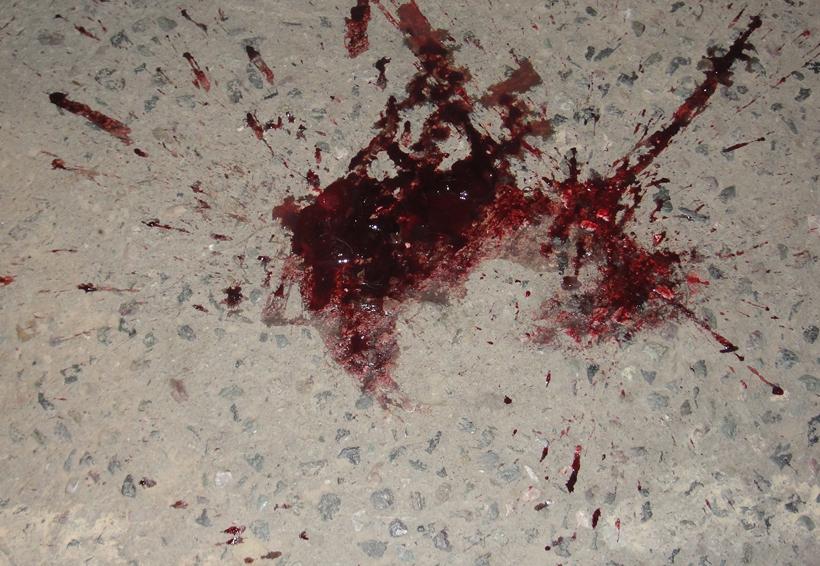 Muere por una herida en el tórax | El Imparcial de Oaxaca