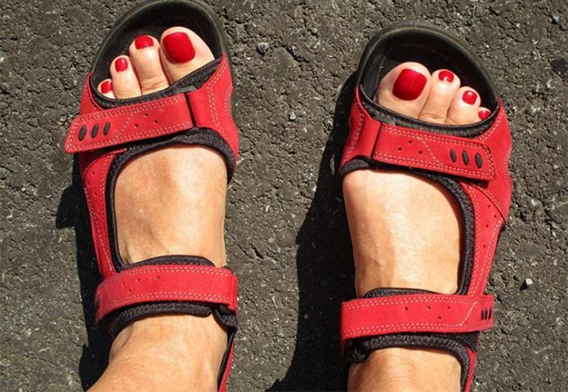 Hongo en las uñas puede extenderse hasta el rostro | El Imparcial de Oaxaca