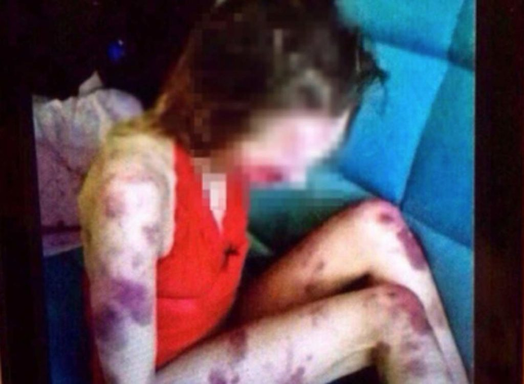 Indignación por caso de un hombre que golpeó hasta la muerte a su amante | El Imparcial de Oaxaca