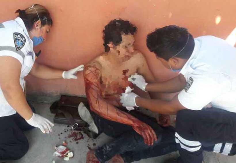 Mujer lesiona a su expareja con un cúter | El Imparcial de Oaxaca