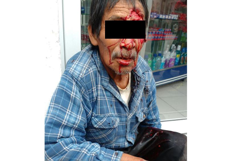 Procesado por atropellar a adulto de 79 años en Oaxaca | El Imparcial de Oaxaca