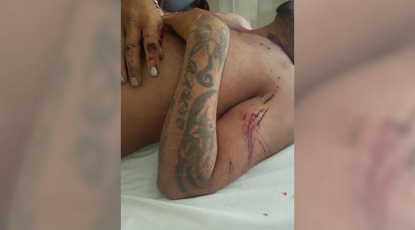 Muere, tras accidente en motocicleta en Huajuapan de León, Oaxaca   El Imparcial de Oaxaca