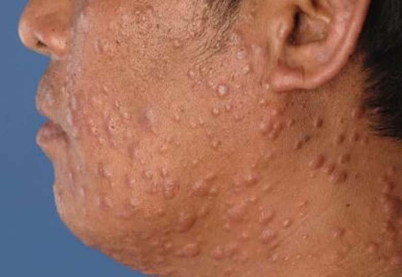 La lepra ya no es de alta incidencia en Oaxaca | El Imparcial de Oaxaca