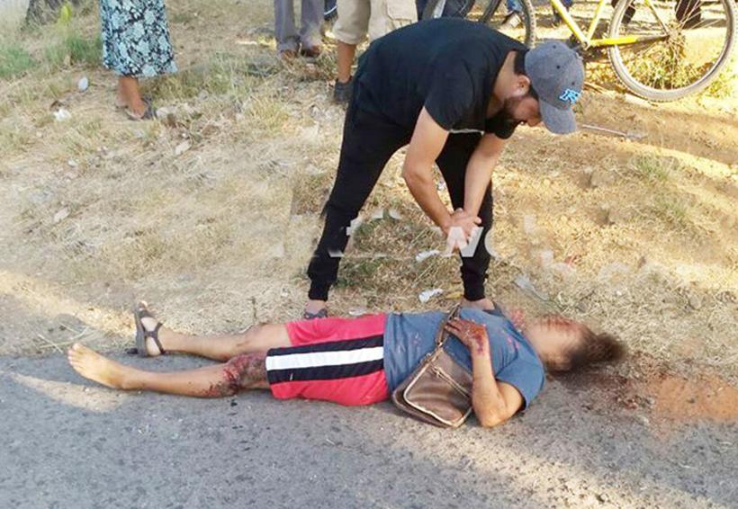 Fémina embestida por una camioneta | El Imparcial de Oaxaca