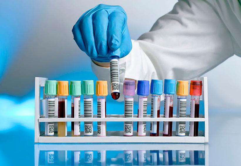 Alertan enfermedad mortal que se extiende y no tiene vacuna   El Imparcial de Oaxaca