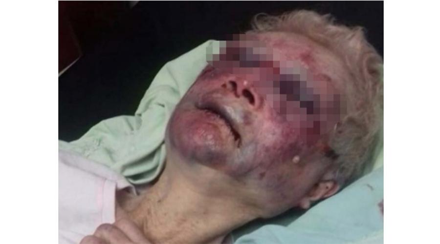 Anciana accede a clínica por golpiza en asilo   El Imparcial de Oaxaca