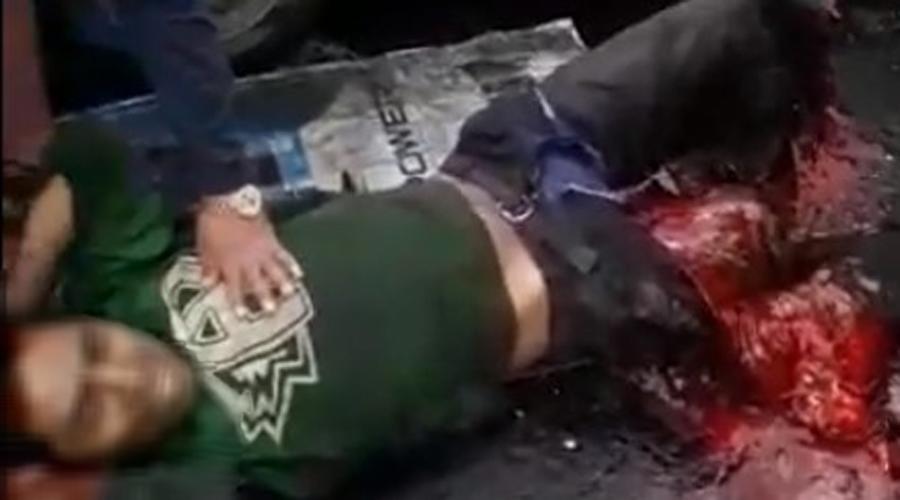 Mecánico pierde las piernas por culpa de conductor borracho | El Imparcial de Oaxaca