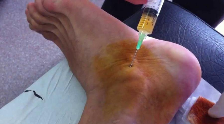 Artrocentesis, procedimiento de diagnóstico de la artritis | El Imparcial de Oaxaca