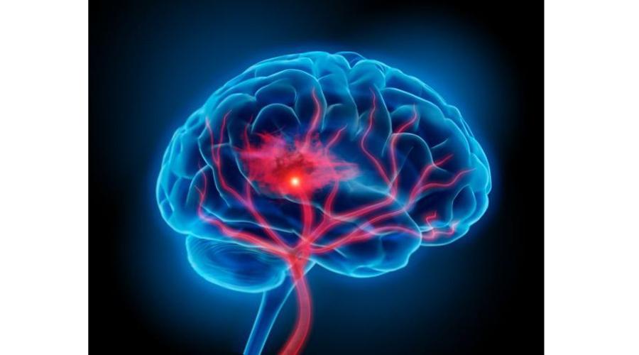 Científicos localizan partes del cerebro que generan el libre albedrío | El Imparcial de Oaxaca