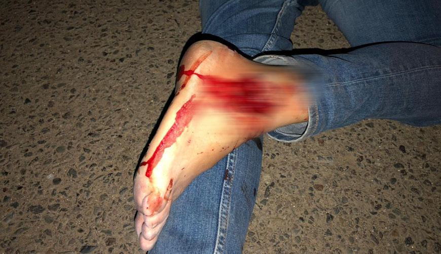 Derrapa motociclista en la Macroplaza, Oaxaca | El Imparcial de Oaxaca