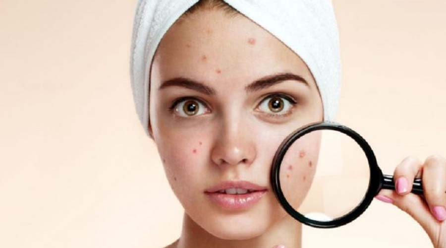 Enfermedades que puedes confundir con acné | El Imparcial de Oaxaca