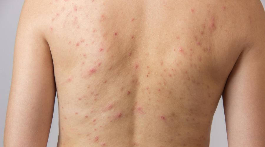 Recomendaciones para eliminar el acné de la espalda   El Imparcial de Oaxaca