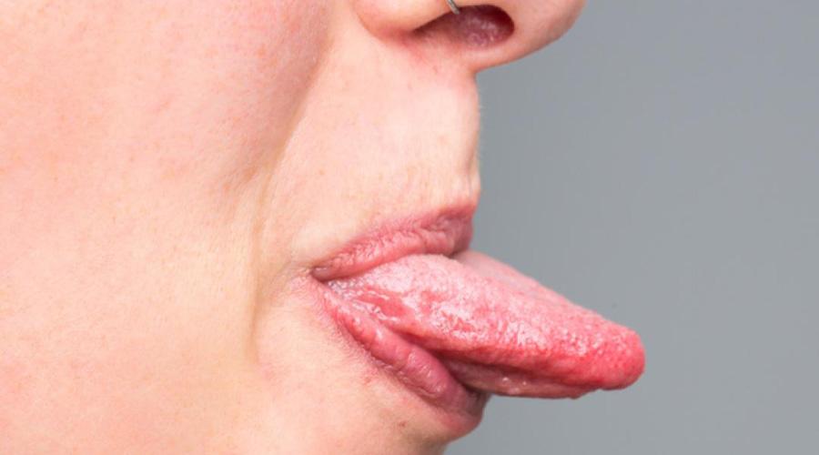 papiloma en hombres boca