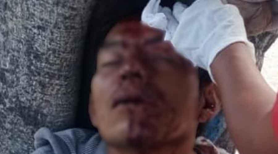 Lo atracan y golpean en la Central de Abasto   El Imparcial de Oaxaca