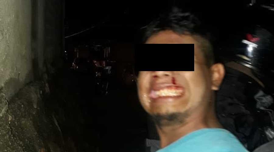 Ebrio ocasiona un accidente en Xoxocotlán | El Imparcial de Oaxaca