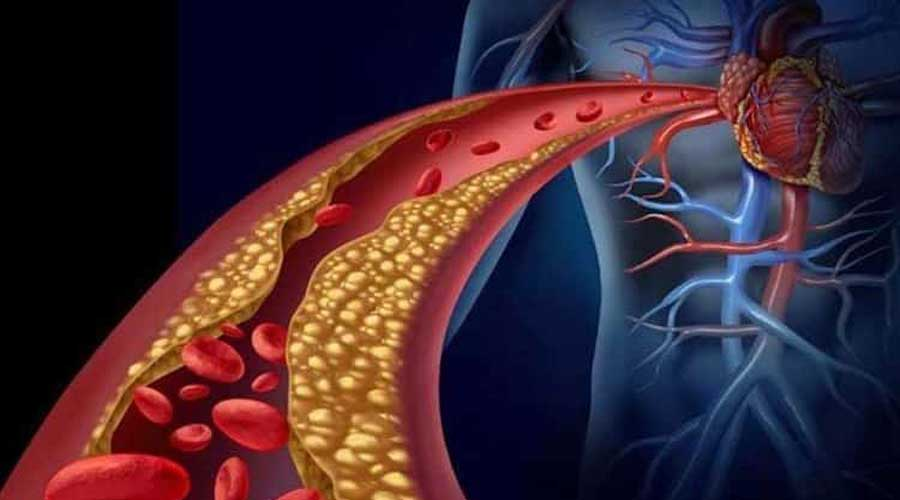 ¿Puede el colesterol ayudar contra la arterosclerosis?   El Imparcial de Oaxaca