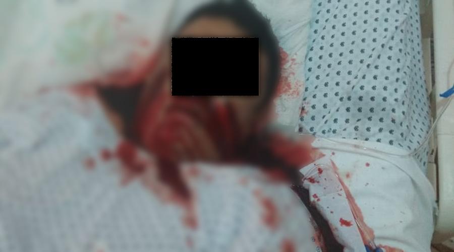 Ataca a balazos a 'El Cantinflas' en Matías Romero | El Imparcial de Oaxaca