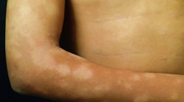 Van 19 casos de lepra en Oaxaca | El Imparcial de Oaxaca