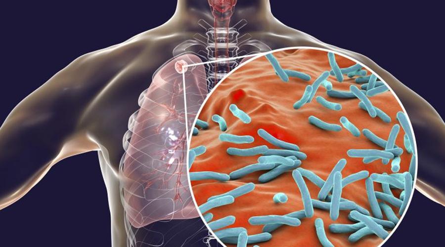 Alarman casos de tuberculosis en Oaxaca   El Imparcial de Oaxaca