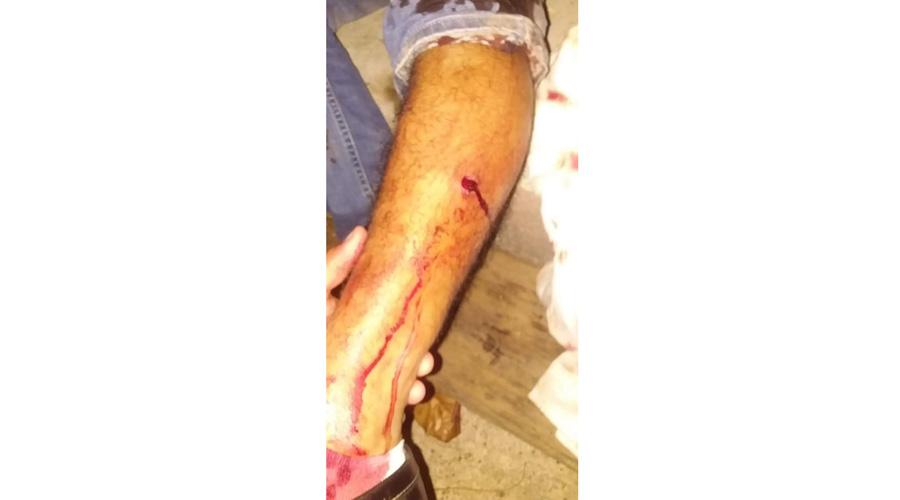 Resulta lesionado por arma de fuego en una Vela | El Imparcial de Oaxaca