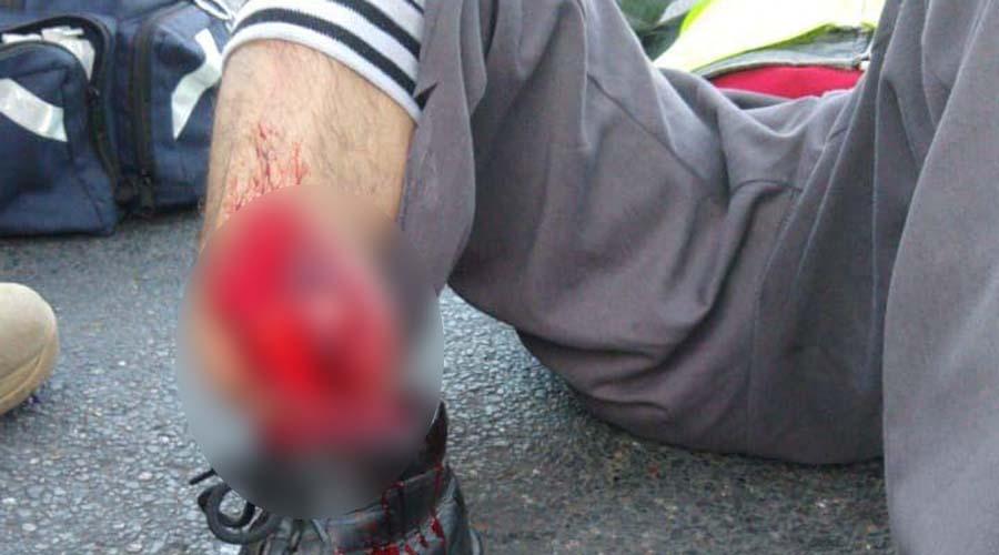 Dos motociclistas chocan de frente en la carretera 190 | El Imparcial de Oaxaca