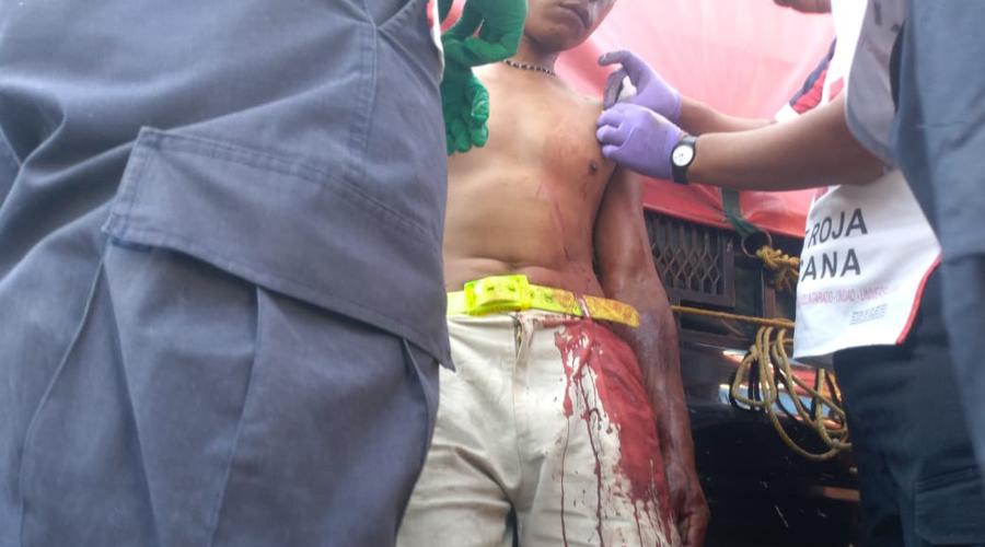 Es atacado con una filosa punta | El Imparcial de Oaxaca
