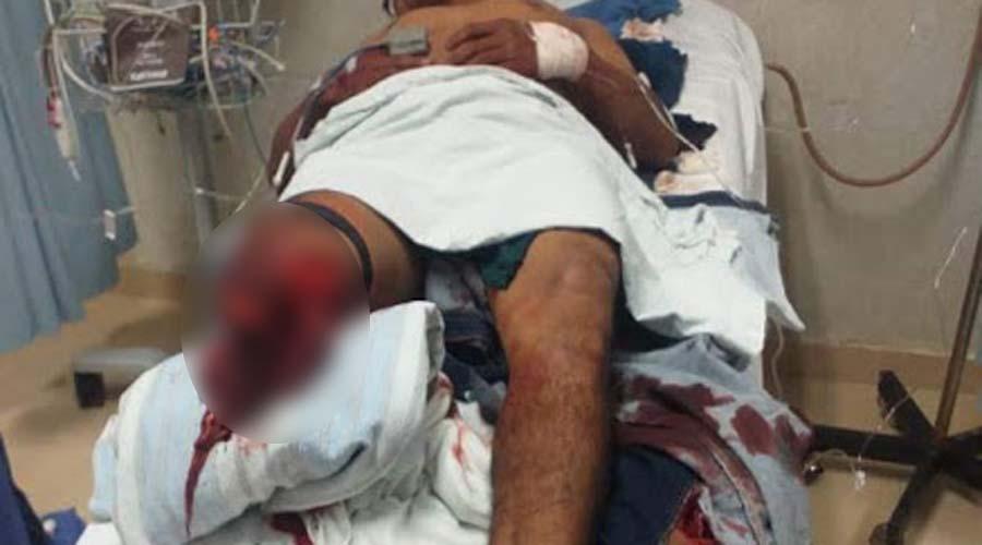 Hombre pierde una pierna en un accidente en moto | El Imparcial de Oaxaca