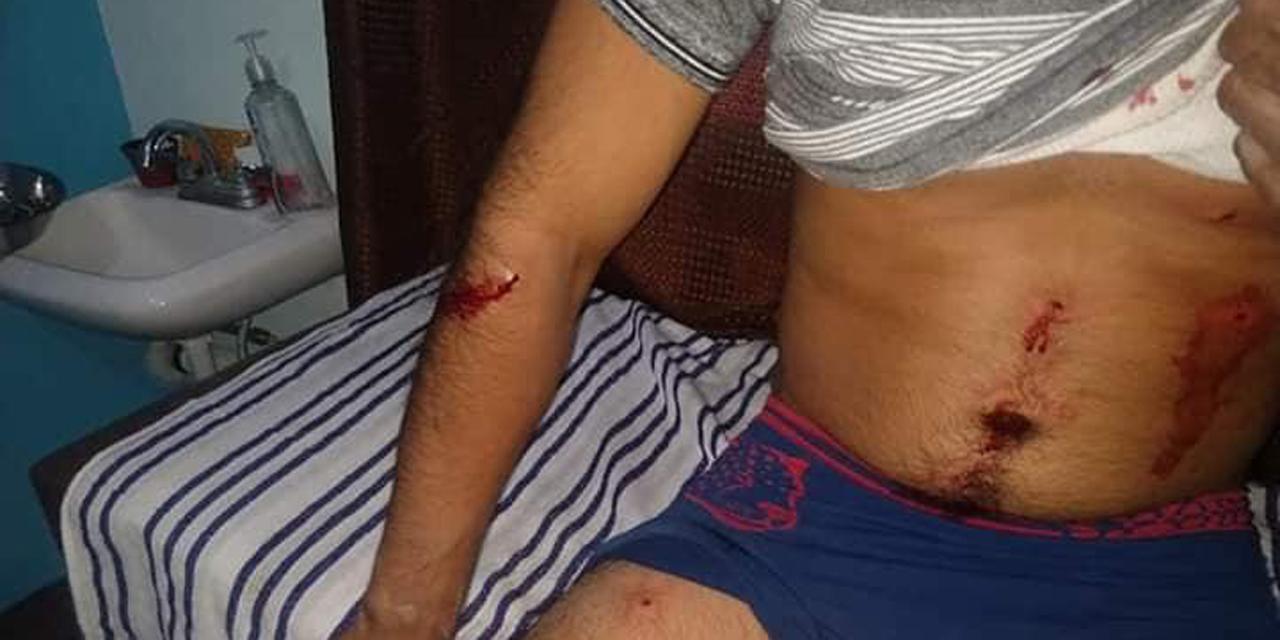 Zafarrancho en Xadani deja persona lesionada