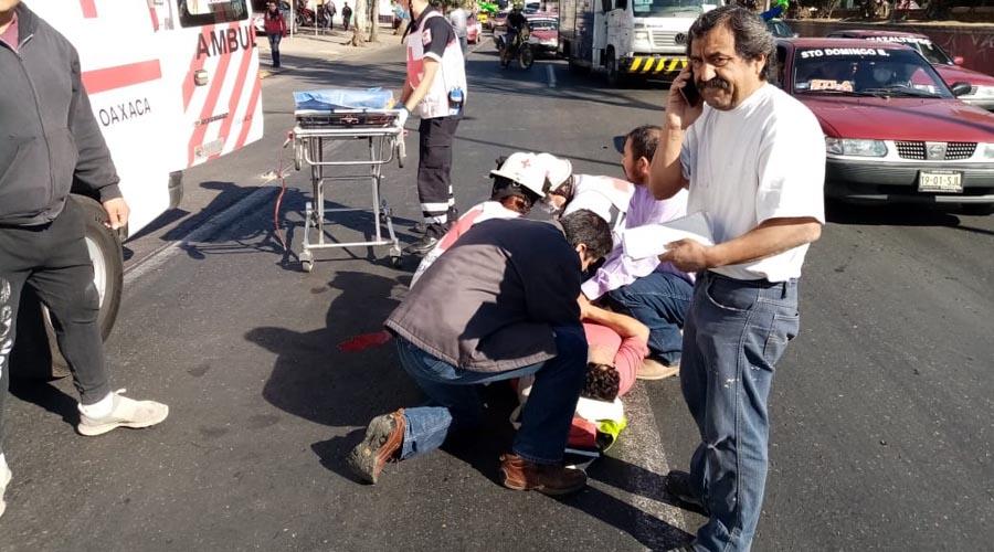 Muere mujer que perdió la pierna tras ser atropellada | El Imparcial de Oaxaca