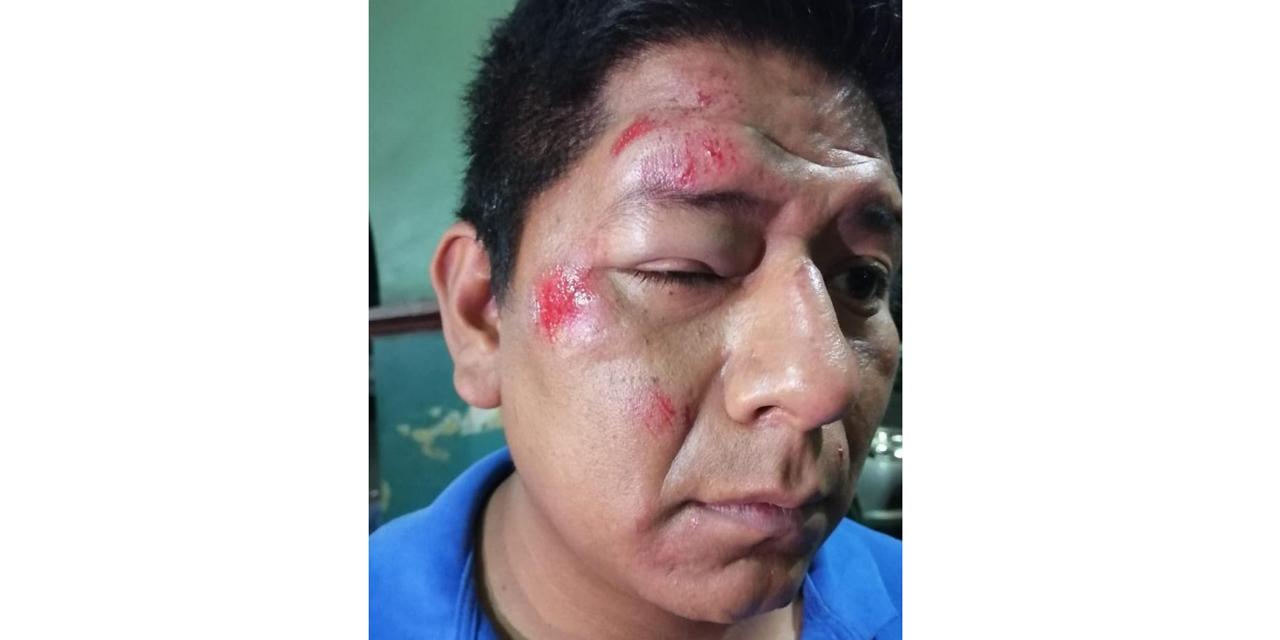 Mototaxista es golpeado sin piedad   El Imparcial de Oaxaca