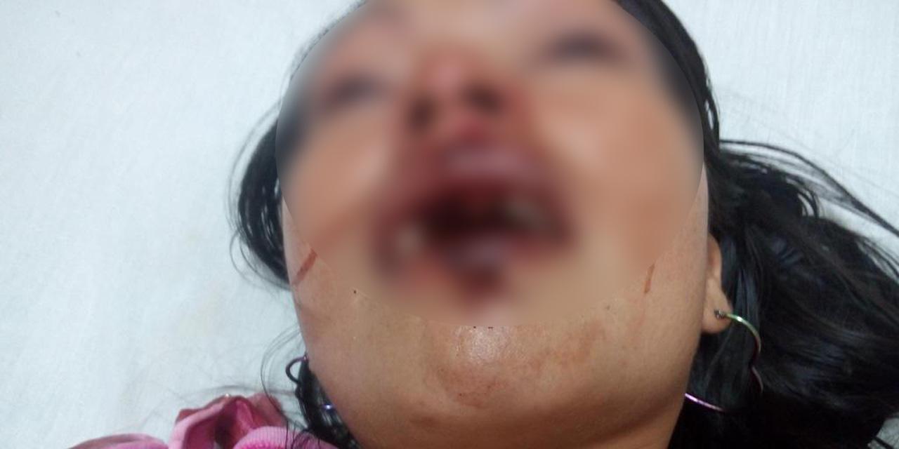 Detienen a militar golpeador por tentativa de feminicidio | El Imparcial de Oaxaca