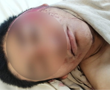 Motociclista derrapa brutalmente en carretera federal 190