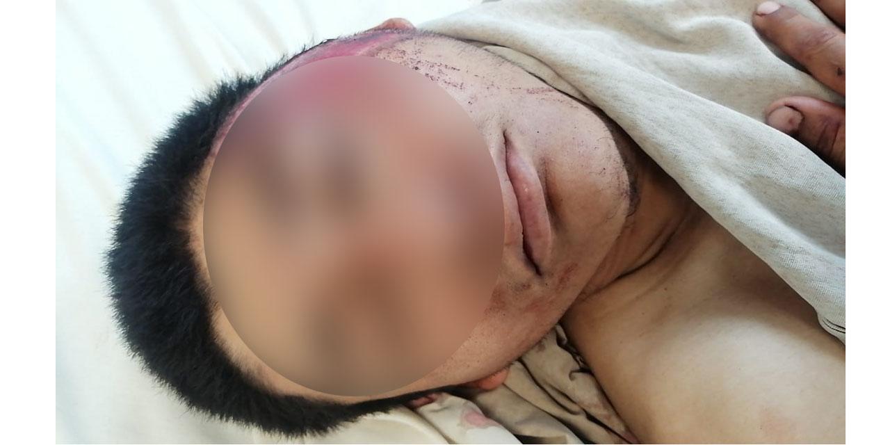 Motociclista derrapa brutalmente en carretera federal 190 | El Imparcial de Oaxaca