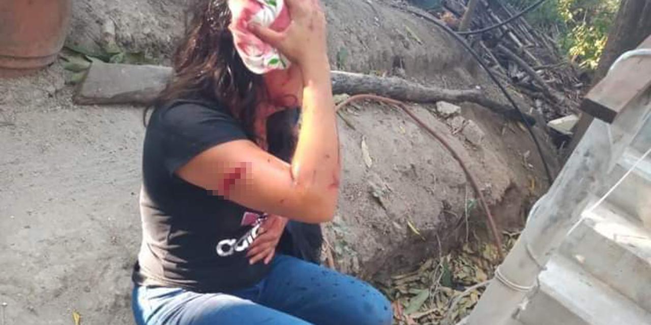 Ataca a mujer con machete, exigen que se haga justicia | El Imparcial de Oaxaca
