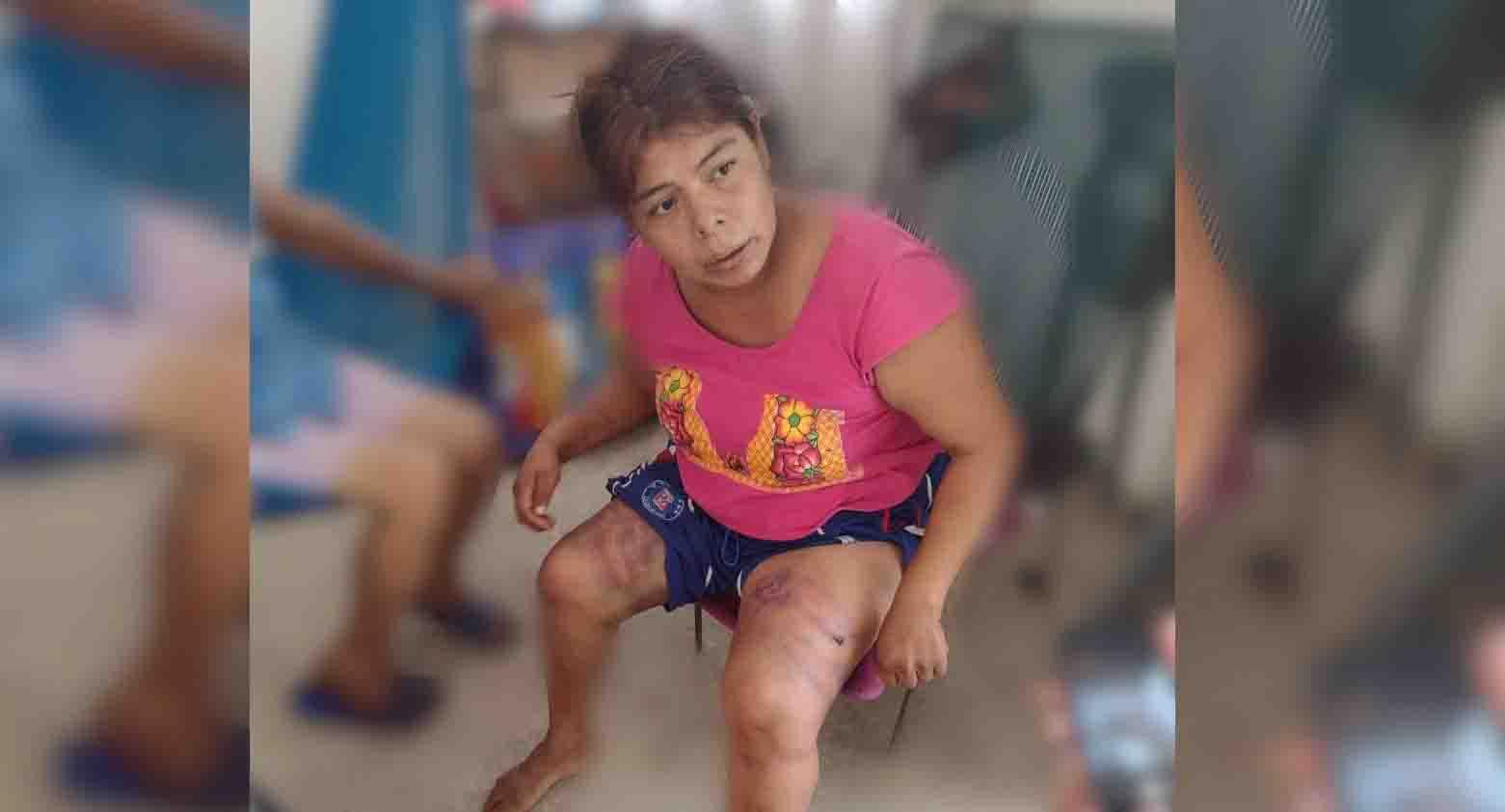 Muere Carolina, víctima de violencia intrafamiliar   El Imparcial de Oaxaca