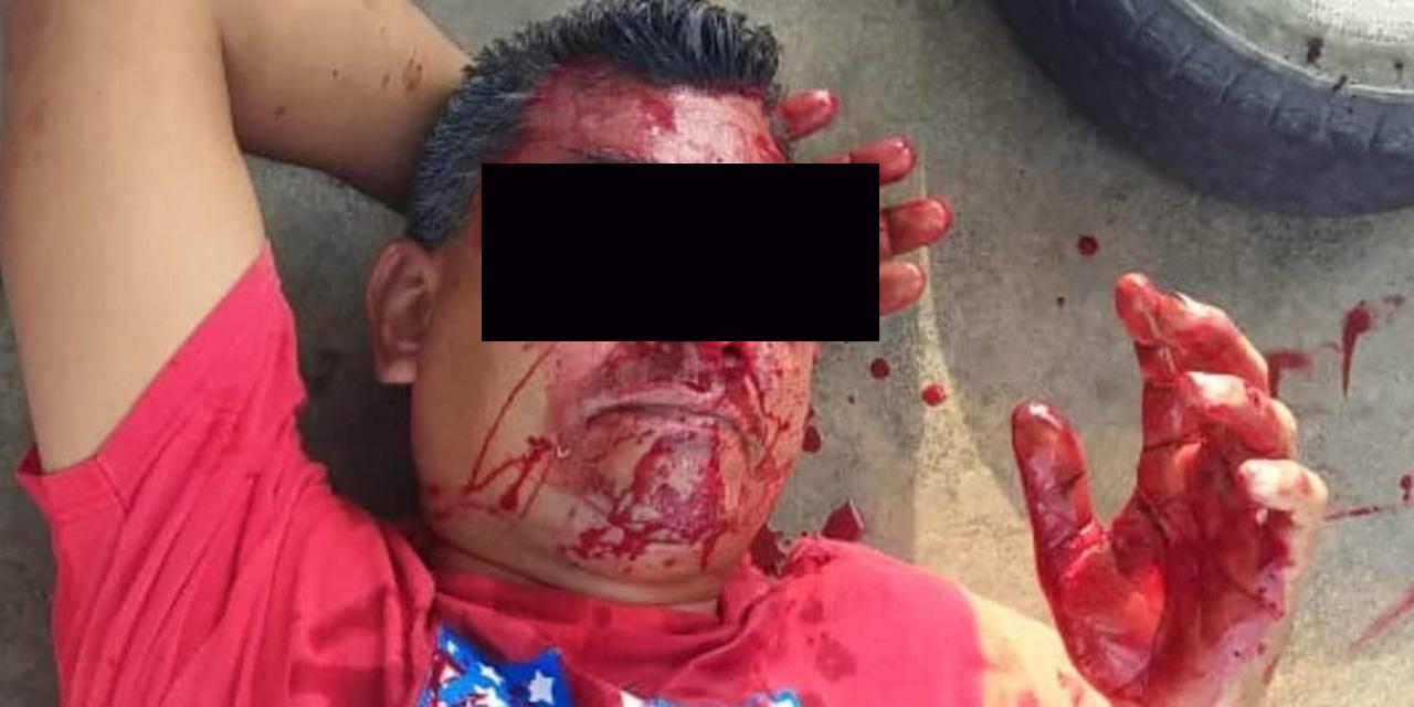 Le explota llanta en el rostro y casi pierde un ojo   El Imparcial de Oaxaca