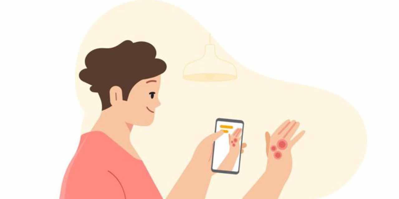 Google distinguirá con cámara del celular problemas de la piel como el cáncer | El Imparcial de Oaxaca