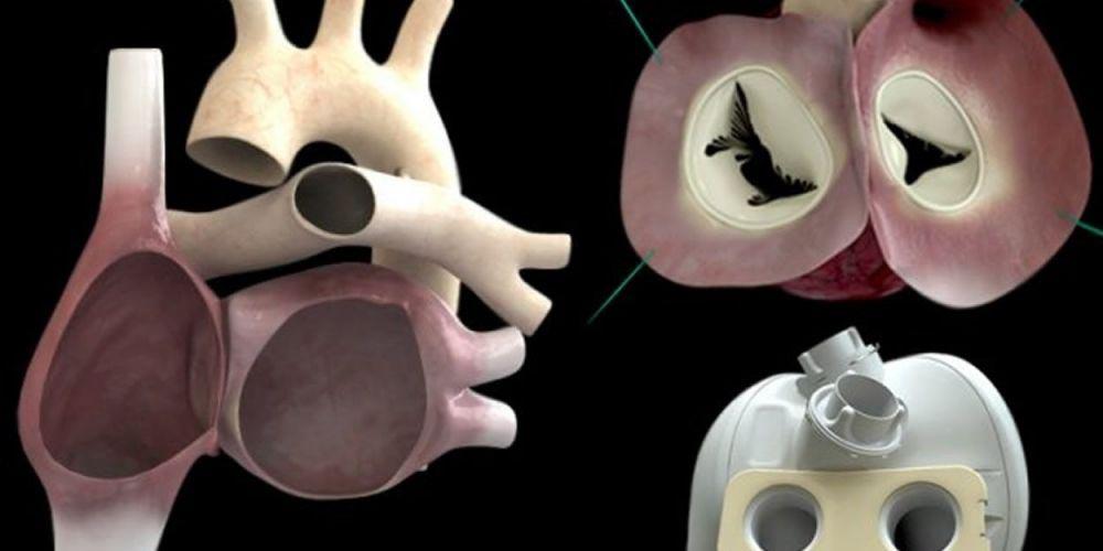 Como parte de un estudio clínico, en EU se realiza primer implante de corazón artificial | El Imparcial de Oaxaca