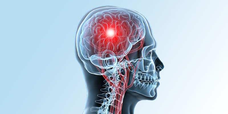 Si tienes diabates, el riesgo de accidente cerebrovascular aumenta: algunos consejos para mantenerlo a raya | El Imparcial de Oaxaca