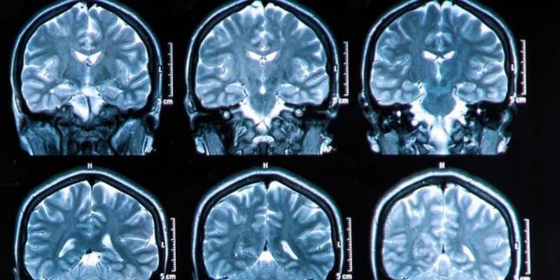 Crean Inteligencia Artificial capaza de diagnosticar demencia a partir de un escaneo cerebral | El Imparcial de Oaxaca