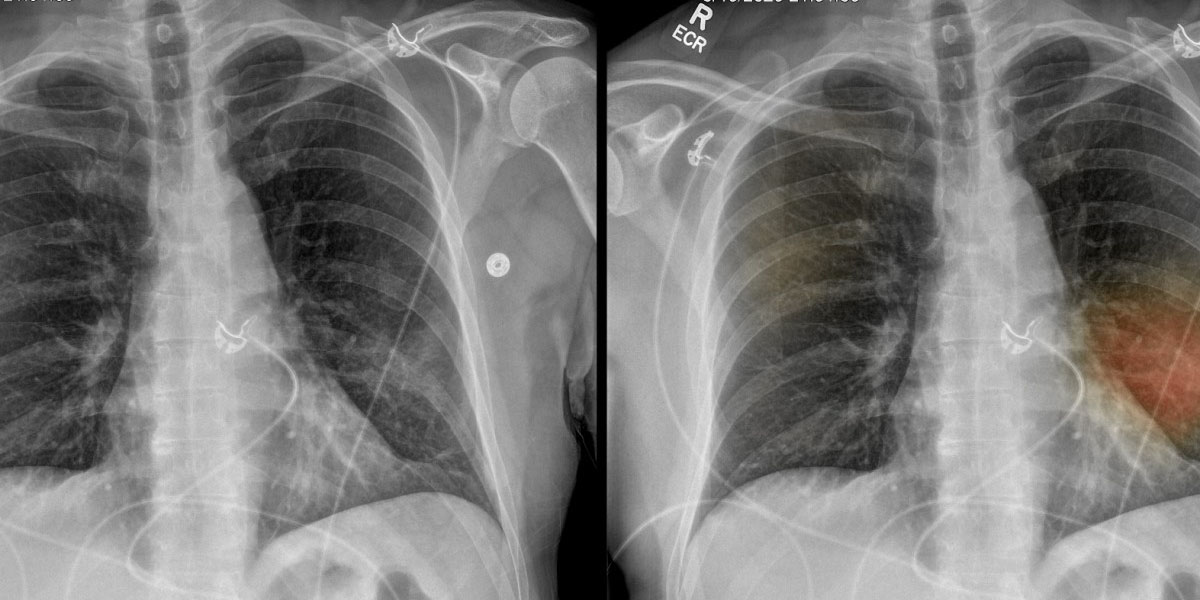 Tarda hasta 12 semanas la rehabilitación pulmonar por secuelas después del covid | El Imparcial de Oaxaca