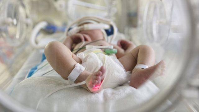 Muere bebé de 13 días de nacido por covid; era un niño sano sin comorbilidades | El Imparcial de Oaxaca