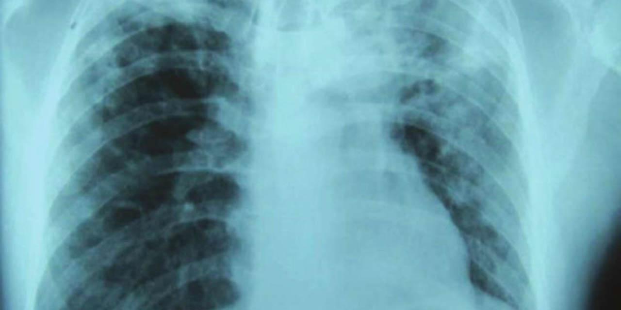 Aumentan muertes por tuberculosis por primera vez en años | El Imparcial de Oaxaca